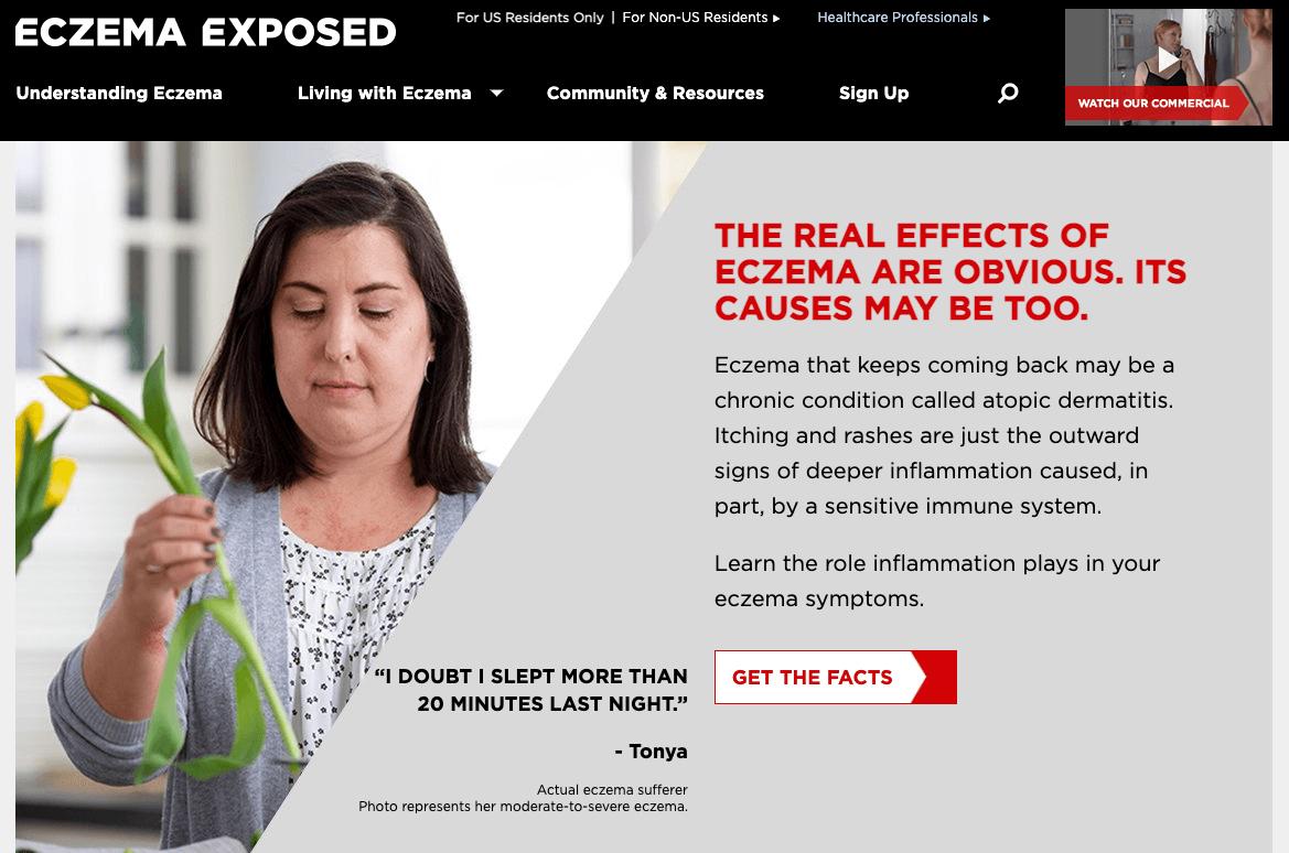 Eczema Exposed Example of great unbranded pharma website